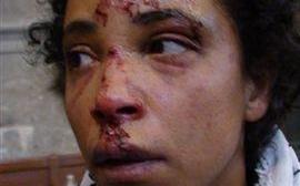 L'Etat condamné pour violences policières sur une Bordelaise