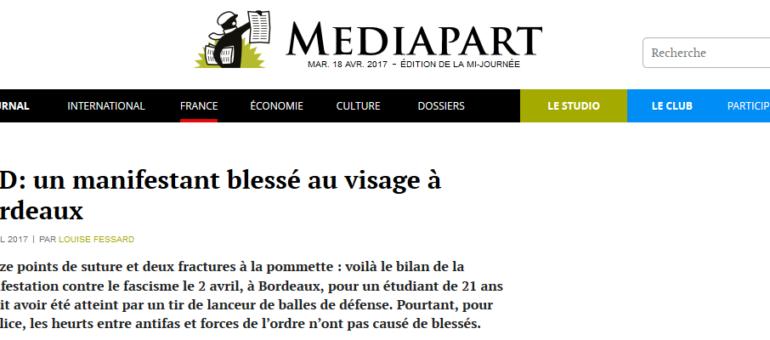 Fracture et points de suture : l'autre bilan de la manif anti-Le Pen à Bordeaux