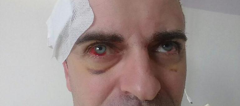 Le difficile combat d'Olivier Béziade, pompier volontaire blessé à Bordeaux lors d'une manifestation des Gilets jaunes